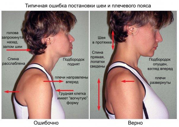 болит шея плечи и поясница
